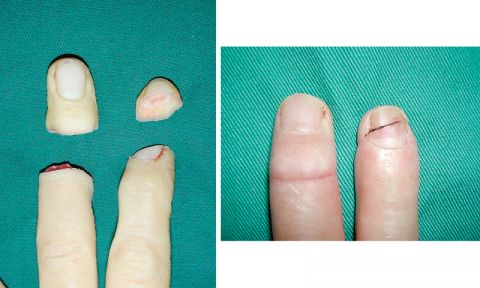 Department of hand and reconstructive microsurgery